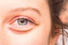 Waspada! Glaukoma Bisa Menyebabkan Kebutaan, Ini Gejalanya - JPNN.com