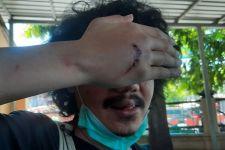 Dituding di Tengah Jalan, Suki Jurnalis Detikcom Jadi Korban Pengeroyokan - JPNN.com Jatim