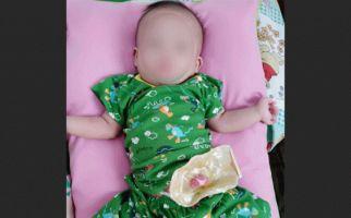 Tolong! Bayi Muhamad Arpan Butuh Bantuan, Lahir Tanpa Anus - JPNN.com